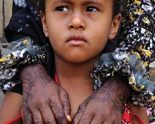 A distinctive henna pattern decorates the hands of an internally displaced woman in Lahj.