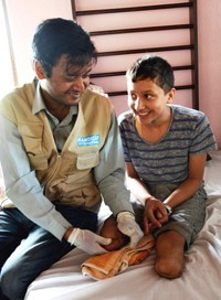 Daily therapy sessions prepared Sandesh Basnet to be fit for protheses.
