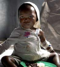 Pictured is a young child suffering from cholera and receiving food aid from the Agency. Photographer: © Frederic Courbet /Panos